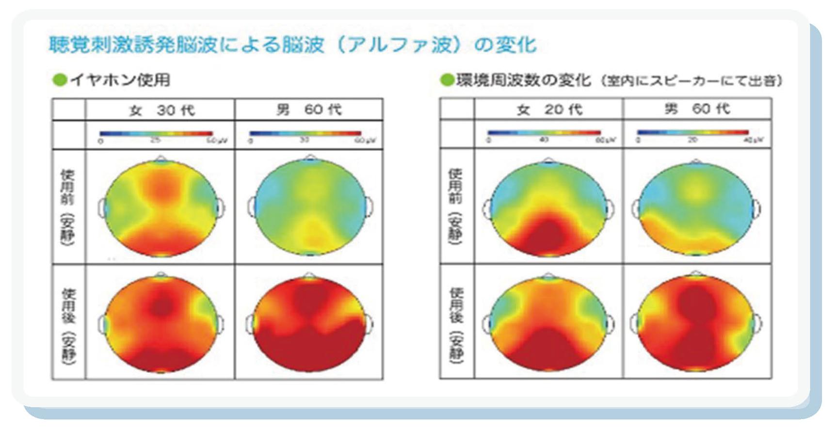 Brain Chart Summer2015