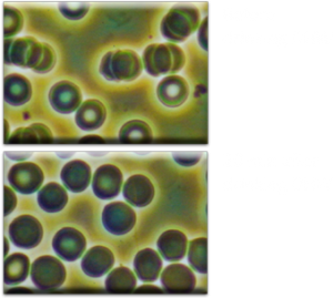 DHW赤血球