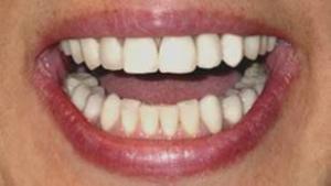 雅代さんの歯